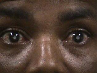 Togo : La Banque islamique de développement veut lutter contre la cataracte