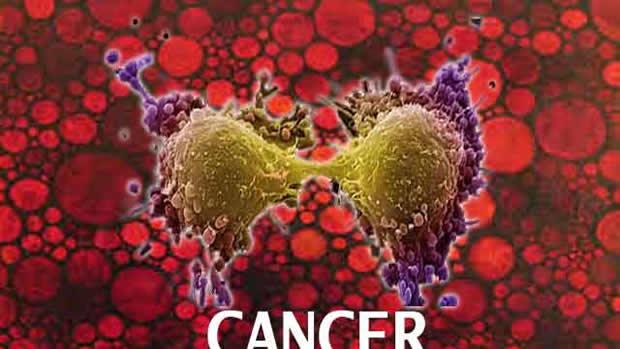 Journée Mondiale de lutte contre le Cancer : 1 personne sur 2 souffre du cancer aujourd'hui !
