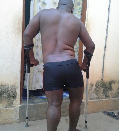 Appel à l'aide pour AWUTSE Koffi Felix atteint de nécrose des têtes fémorales