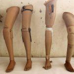 Affaires de prothèses, la LTDH en appelle à la justice