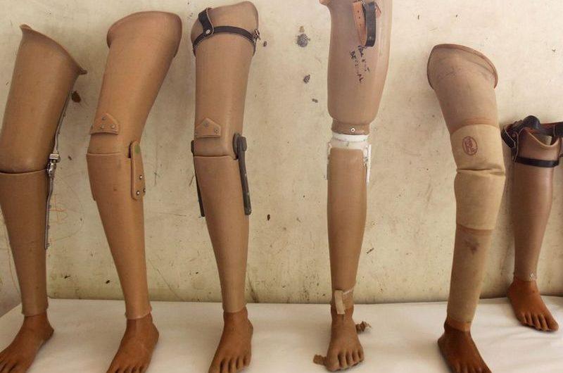 Togo: Affaire de prothèses périmées au CHU, l'appel de la LCT