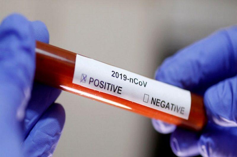 Le Togo prend une nouvelle mesure pour freiner la propagation du virus(Covid-19).